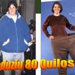 perdadepeso (5) Obesidade/ Obesity 5